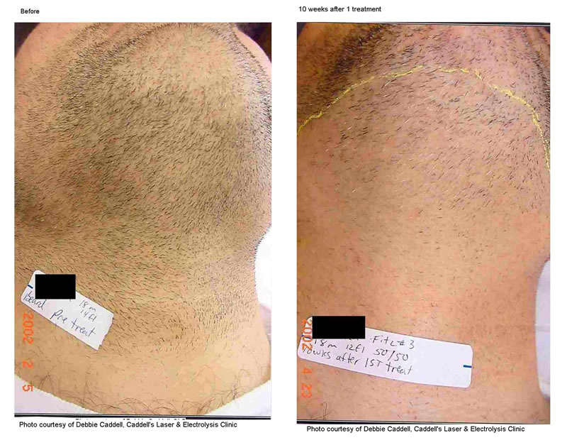 Laser Hair Removal Benessere Clinic